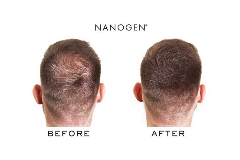 """Nanogen """"before and after"""" marketing"""
